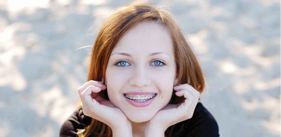 red hair girl smiling with metal braces on her teeth