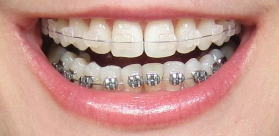 smile showing metal and ceramic braces