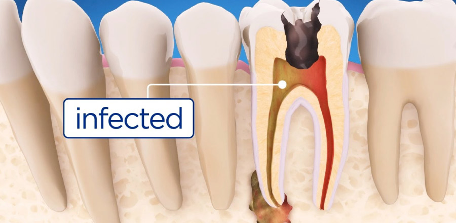 illustration of what root canal infection looks like