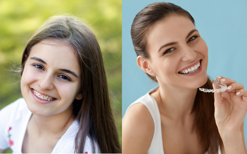 Smiling girl on left with braces & smiling girl on right with invisalign aligner